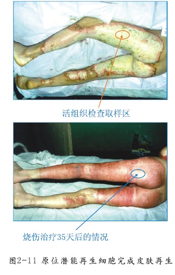 原位干细胞再生修复皮肤器官技术