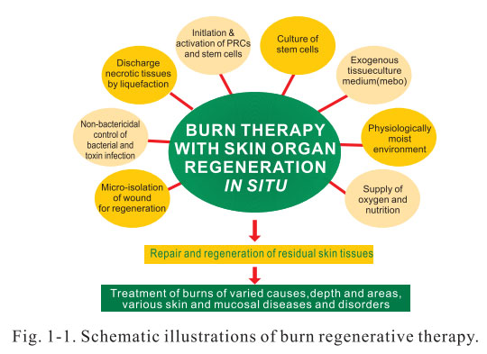 process of tissue repair Soft tissue injury like sprains, strains, contusions & tendonitis needs accomplishing healing stages: inflammation, repair & remodeling for proper recovery.