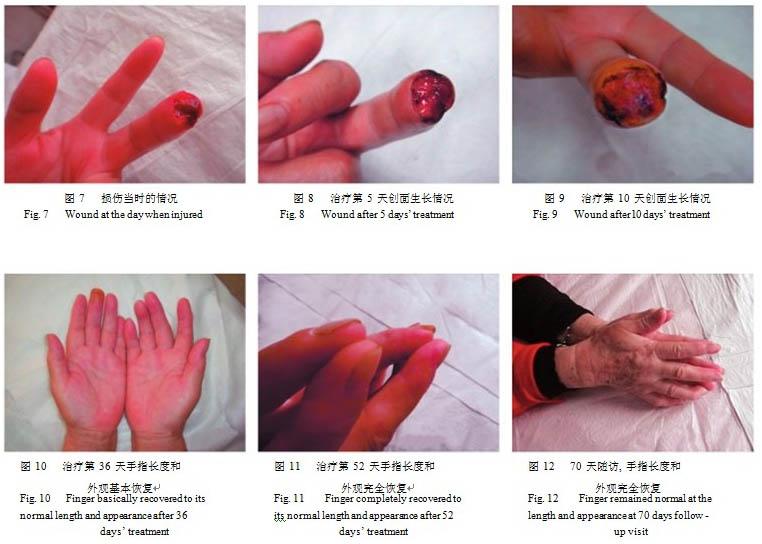 应用mebo治疗皮肤软组织缺损伤临床报告